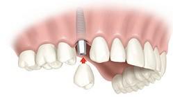 protesi dental